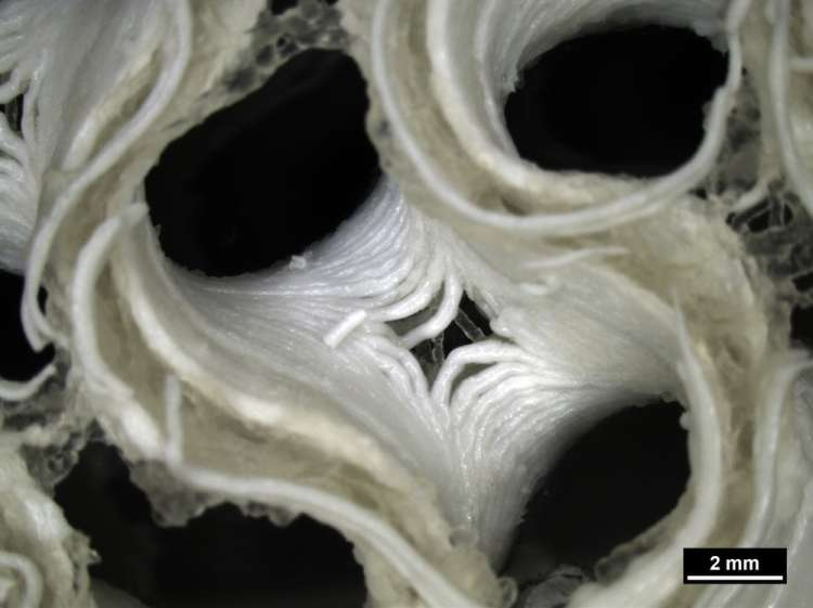 A microscope image of new bioprinted bone growing